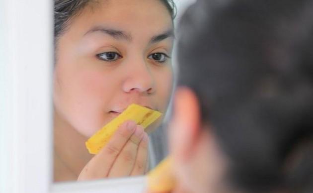 Kulit pisang megatasi jerawat